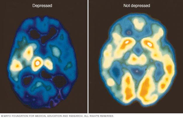 depression-brain-activity